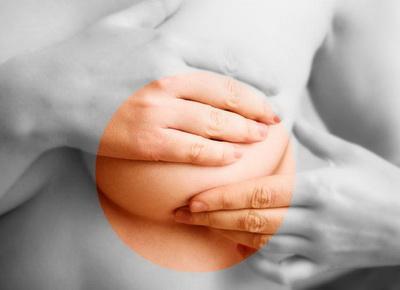 Рак молочной железы - диагностика и лечение